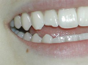 Chipped lateral tooth before repair