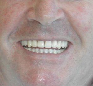 man with dentures smiling