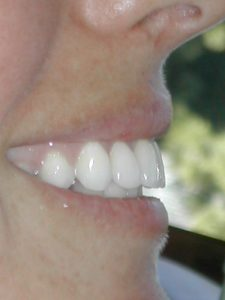 side view of woman's mouth with new crowns