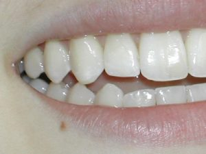 Repaired Lateral composite