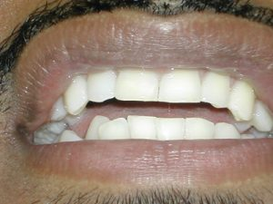 Repaired central tooth male composite filling
