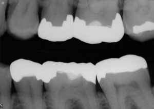 Black and white x-ray of teeth