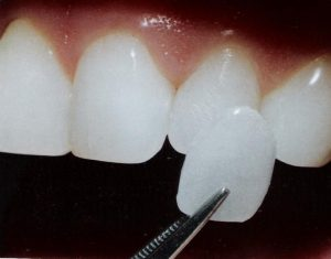 Image adding dental_veneer