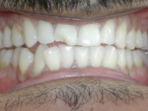 chipped central tooth male