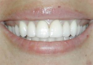 Close up of woman smiling with new crowns